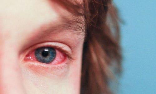 алергічний кон'юнктивіт
