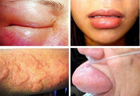 Алергічний набряк Квінке