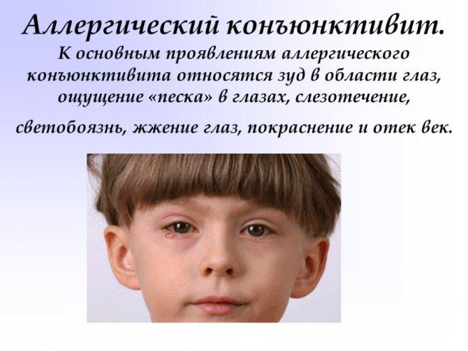 Алергічне запаленою очей