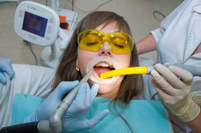 альвеоліт после відалення зуба (головний ключ)
