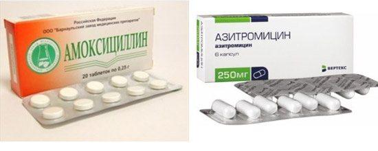 Амоксицилін і Азитроміцин