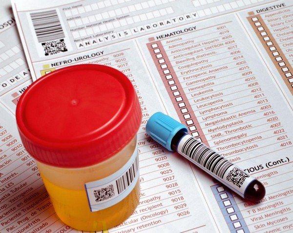 аналіз крови и сечі