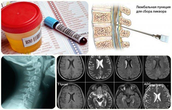 аналіз крови, рентген, МРТ