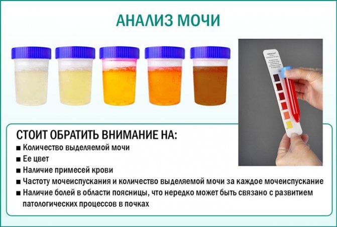 аналіз сечі