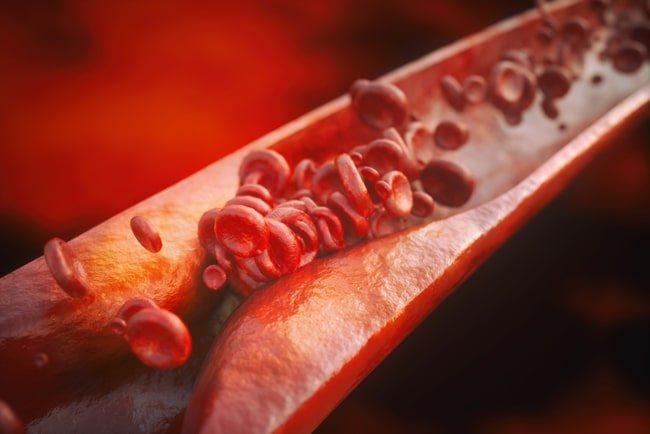 аналіз на ліпідний профіль (спектр) крові