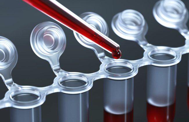 Аналіз на вміст в крови гормонів