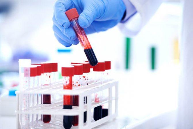 аналіз на залізо и феритин