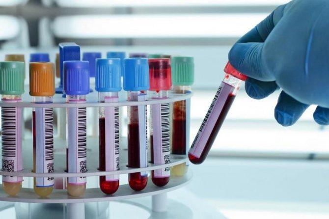 аналізи крові