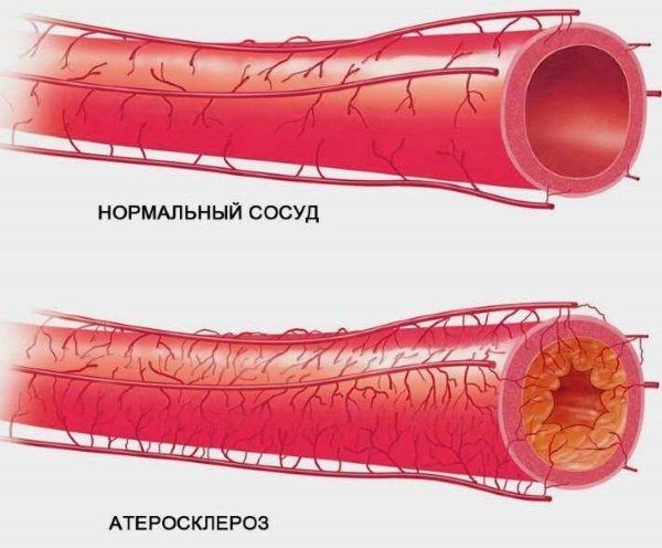 Аналізи на гормони у жінок. Які, як здавати, таблиця, розшифровка