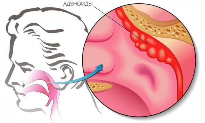 Анатомія І ФУНКЦІЇ глоткової мигдаликів