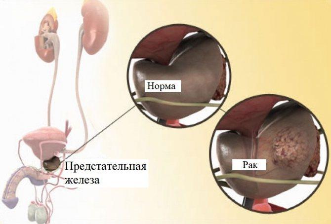 анатомія РПЖ