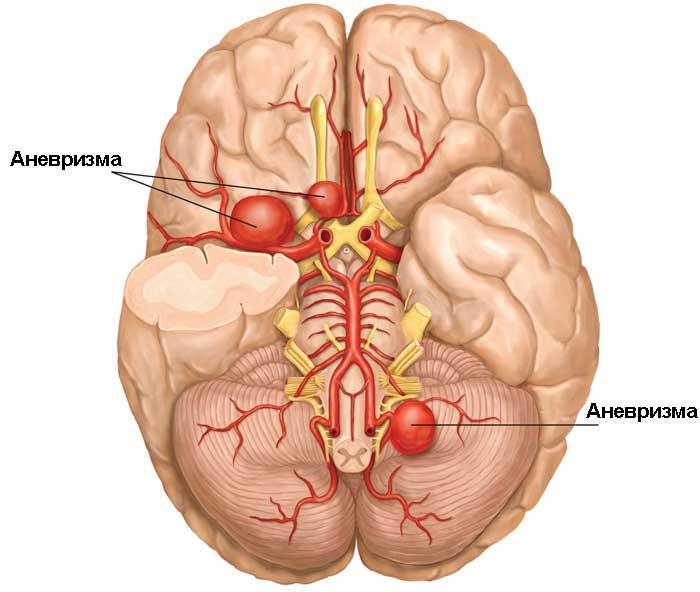 Аневризма головного мозком