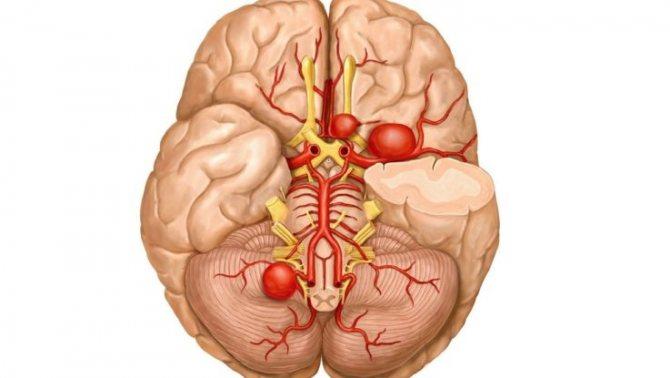 Аневризма Судін головного мозком