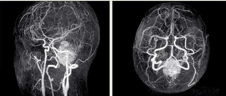 Ангіографія Судін головного мозком