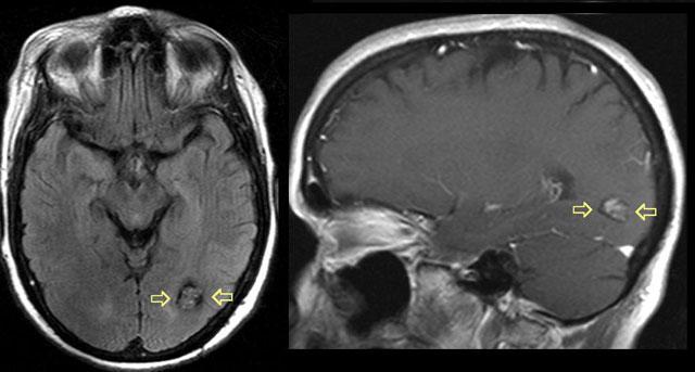 ангіоми головного мозку, КТ знімок