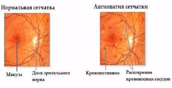 Ангіопатія сітківкі ока