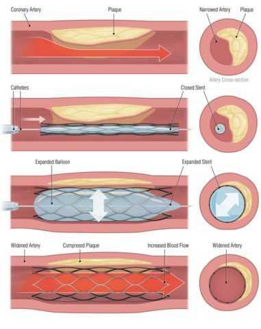 Ангіопластіка зі стенірованіем