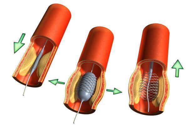 ангіопластіка