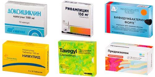 антібактеріальні и патогенетичні засоби: Доксіціклін, Ріфампіцін, Біфідумбактерін, Німесулід, тавегіл, преднізолон