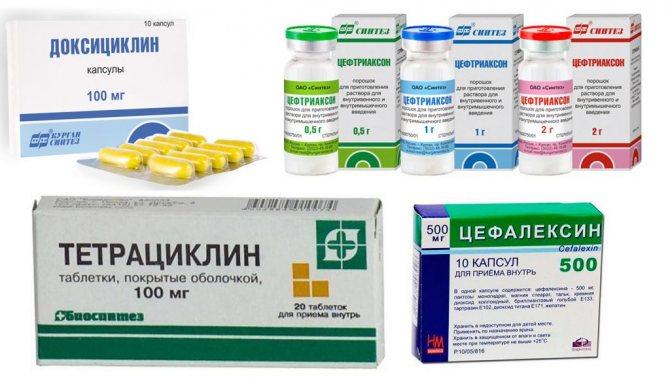 Антибіотики при лікуванні тазостегнового суглоба