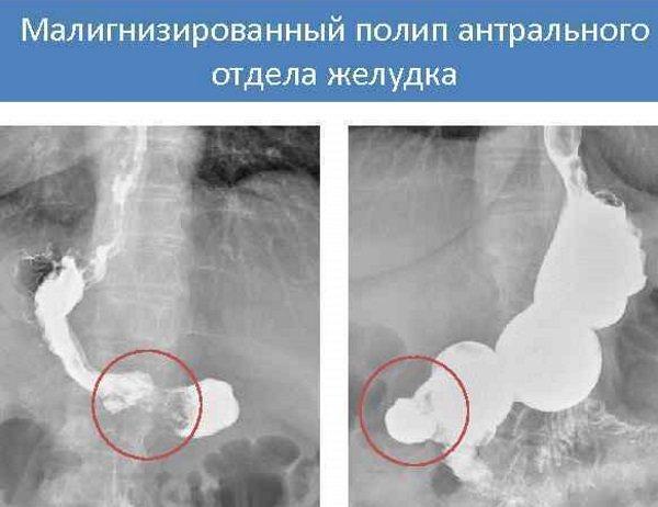 Антральний відділ шлунка. Що це таке, де знаходиться, анатомія, симптоми захворювань та лікування