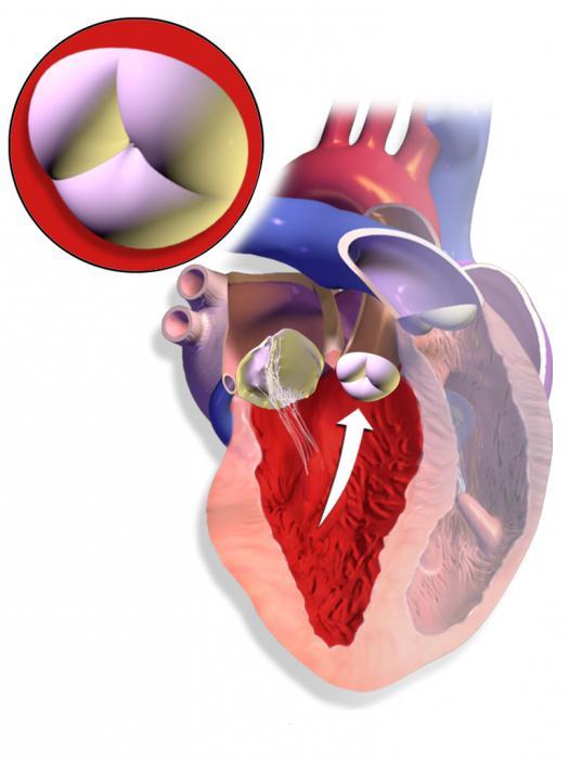 аортальнийстеноз