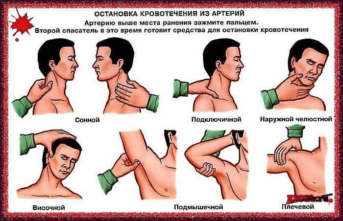 Артеріальний кровотеча перша допомога, правила її надання