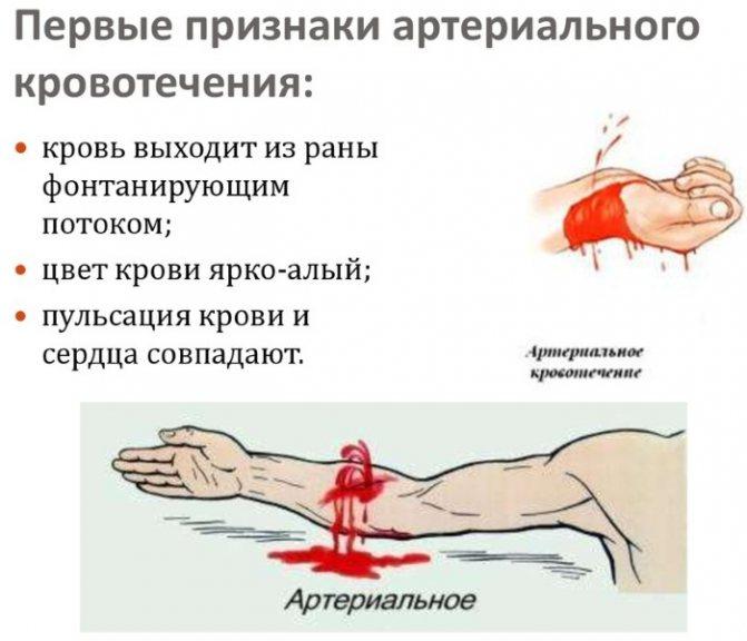 Артеріальна кровотеча. Ознаки, допомога, чому виникає, чим характеризується. Поради лікарів