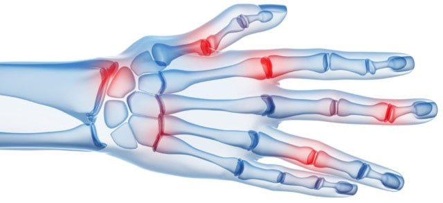 артрит кісті