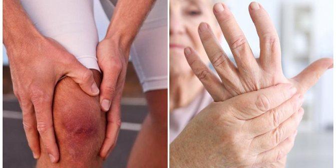 артрит суглобів