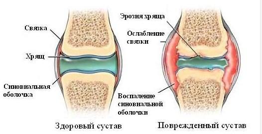 Артроз стопи Симптоми и лікування