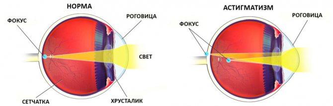 астигматизм на схемі