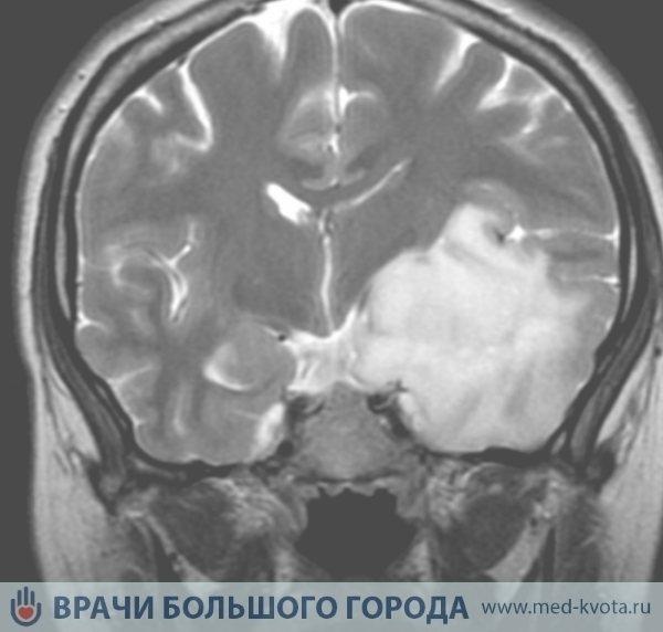 Астроцитома головного мозком - причини, симптоми, діагностика та лікування
