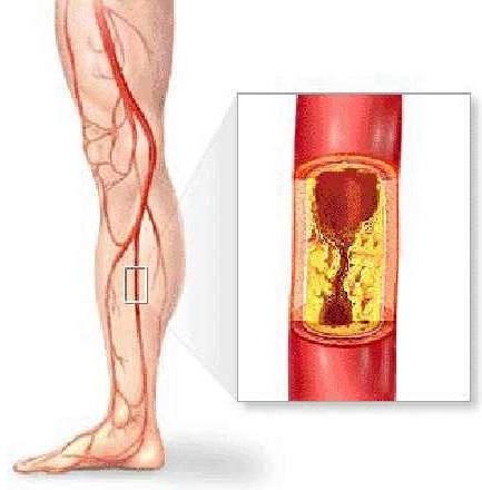 Атеросклеротична бляшка, локалізована в гомілкової артерії (субокклюзія)