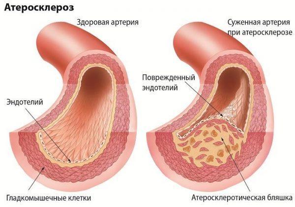 атеросклероз зсередини