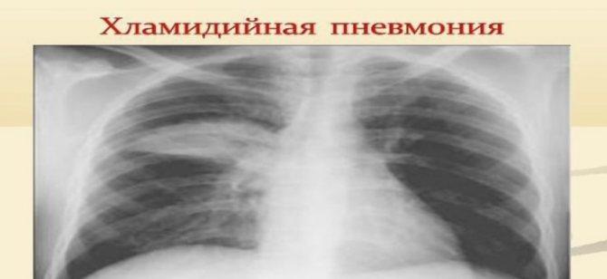 Атипова пневмонія хламідійної етіології