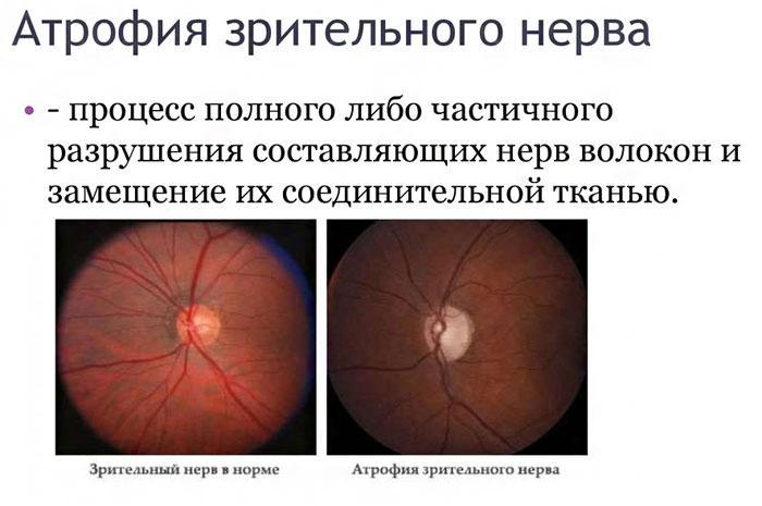 Атрофія очного нерва