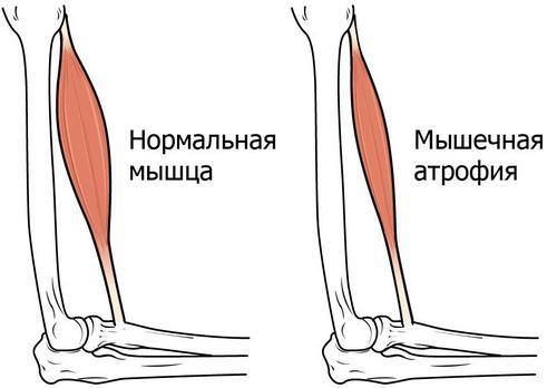 атрофія м'язів