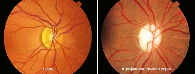 Атрофія зорового нерва - лікування часткової і повної атрофії