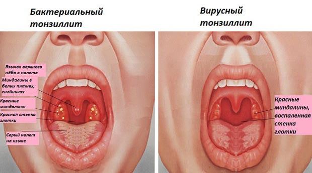 Бактеріальний та вірусний тонзиліти