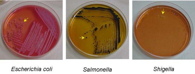 бактеріологічний аналіз калу на дисбактеріоз