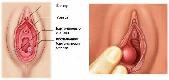 бартолініт