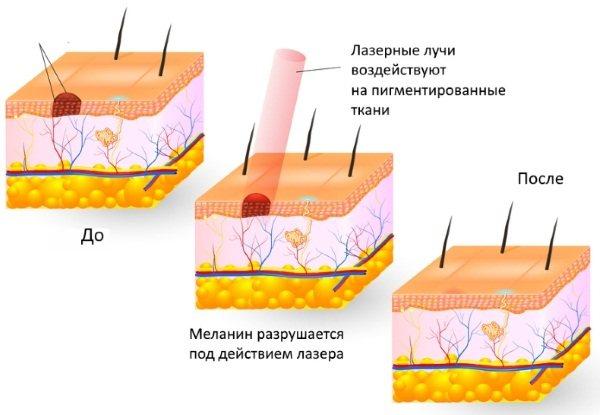 Базаліома шкіри обличчя. Лікування, що це за хвороба, фото різних стадій, народні засоби, лазер, променева терапія