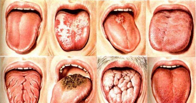 Білий, біло-жовтий Наліт на язик дорослих.  Причини, лікування, як усуваті