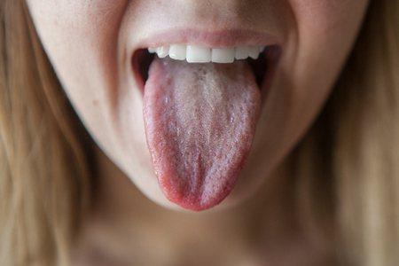 Білий наліт на язиці