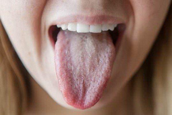Білий наліт при панкреатиті