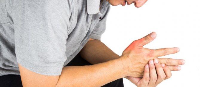 Біль і набряклість руки