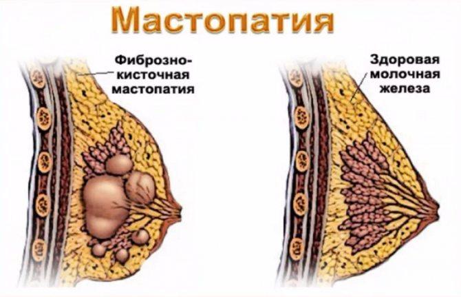 біль в лівій груді