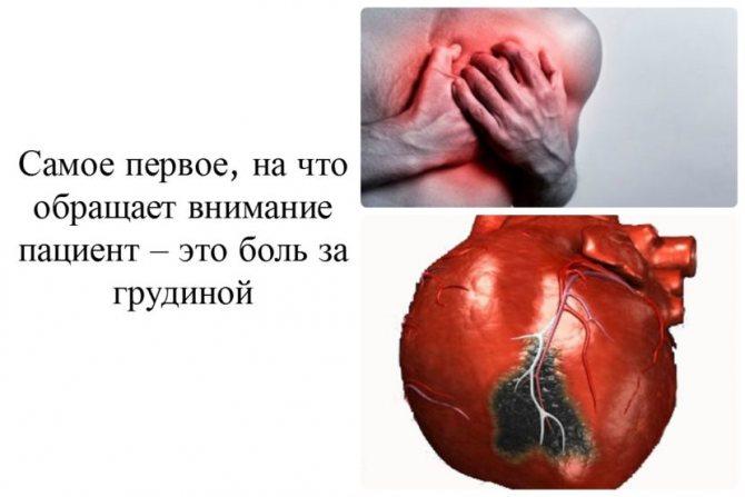 Біль в руці при інфаркті