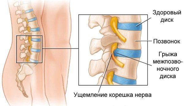 Біль внизу живота у чоловіків: локалізація, причини, симптоми.  Діагностика та варіанти лікування